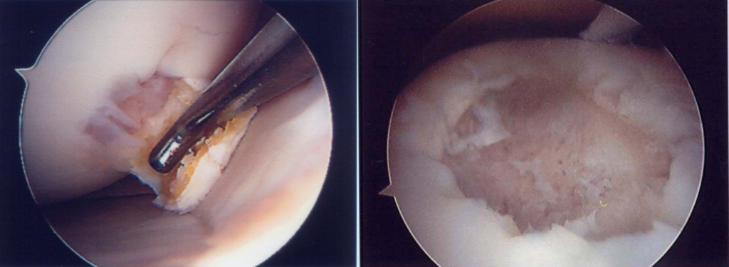 articular cartilage defects